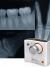 Портативный рентген Remex K-100 от Remedi для стоматологии